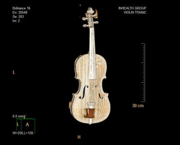 """Iconic Titanic Violin Estimated to Sell For £200000-£300000 at auction.     The world-famous violin played by RMS Titanic bandmaster Wallace Hartley will be auctioned on October 19th by Henry Aldridge and Son, the world's leading auctioneers of blue chip Titanic memorabilia. The instrument, which was discovered in 2006, was played by second-class passenger Wallace Hartley on Titanic's fateful night of April 14th, 1912. It is sold alongside a leather luggage case initialled W. H. H. (Wallace Henry Hartley), in which Wallace placed the violin before going into the cold North Atlantic on the morning of April 15th 1912.   The violin has been on exhibition since May at Titanic Branson and Titanic Pigeon Forge in the United States, the largest Titanic museums in the world where over 315000 viewed it and later at Titanic Belfast, the award winning visitor attraction in Northern Ireland.   The violin itself is German, probably Berlin or Dresden school, circa 1880, bearing a later label Giovan Paolo Maggini Brescia. It is a copy of a Maggini with double purfled back and front, the two piece back of medium curl descending from the joint. The original varnish, now largely absent, is of a dark brown colour with a later golden brown covering. Its eventful life is reflected in the condition with signs of restoration and large cracks on the body of the instrument. The tail plate fitted to the violin bears a silver hallmark Chester, 1910 and is engraved """"For WALLACE on the occasion of our ENGAGEMENT from MARIA"""". It was given to Dewsbury resident Wallace Hartley as a gift from his fiancée Maria Robinson on the event of their engagement. Regarded as a hero in Titanic folk lore, Hartley is credited with the decision to lead his eight-strong band into the historic hymn 'Nearer, My God, to Thee' in an attempt to calm passengers as they boarded lifeboats. All eight men perished in the disaster, and Hartley's remains were recovered on April 25th 1912 by the crew of the ship, MacKay Bennet"""